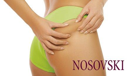 Твоя идеальная фигура! Сеанс вакуумно-роликового массажа тела на аппарате LDG-6 в салоне красоты «NOSOVSKI» Всего за 96 грн. вместо 240!