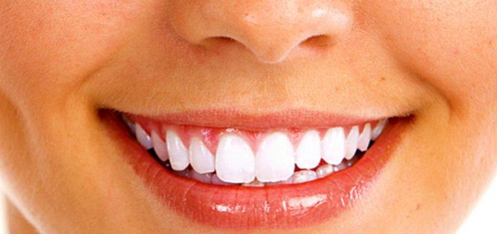 Чистка зубов и air-flow с фторированием в стоматологии «Стоматолог и Я»