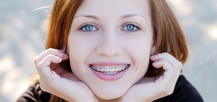 Скидка до 62% на установку брекетов в стоматологической клинике «Стоматолог и Я»