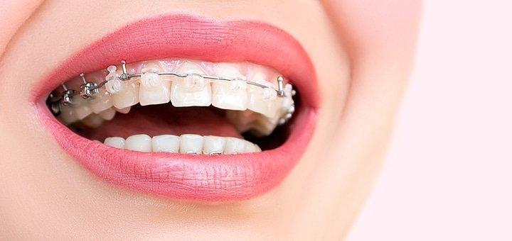 Скидка 50% на установку брекет-системы в стоматологии на Александра Поля